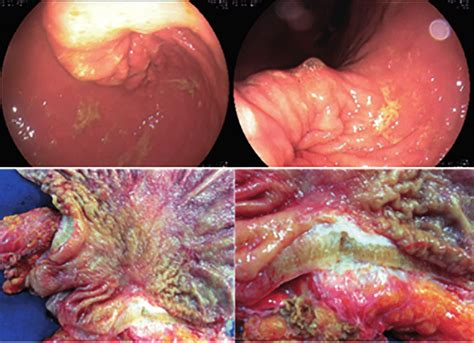 Upper endoscopy showing breast cancer metastasis to the ...