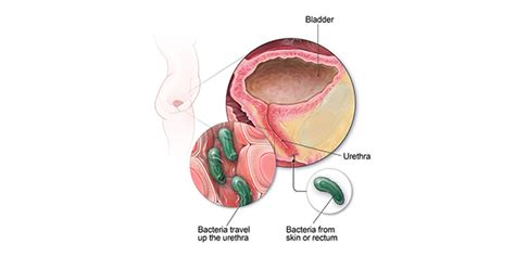 Urinary Tract Infection | Community | Antibiotic Use | CDC