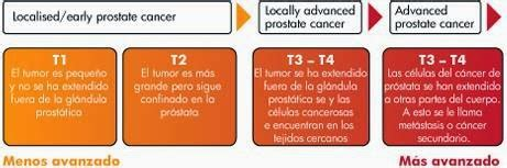 Urología Peruana: Dr. Susaníbar: Cáncer de próstata