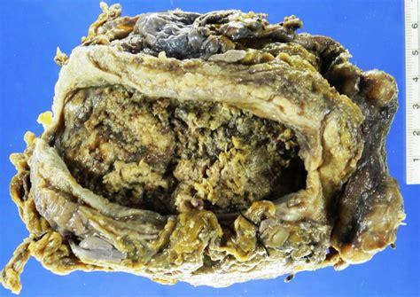 Uropatología en Línea: Carcinoma de Células Escamosas de ...