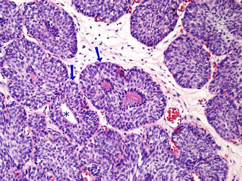 Uropatología en Línea: Papiloma de la Vejiga Urinaria