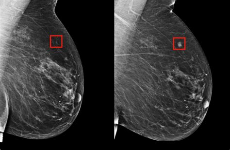 Using AI to predict breast cancer and personalize care ...