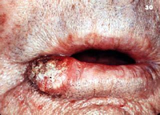 Variaciones clínicas del carcinoma de células escamosas