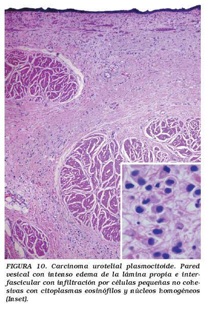 Variantes histológicas del carcinoma urotelial con ...