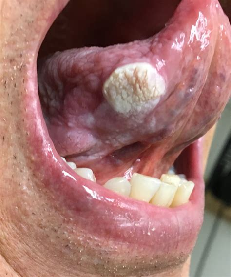 Verrucous squamous cell carcinoma of the tongue