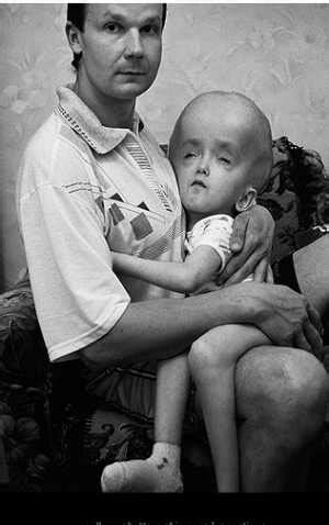 Victims of the radiation at Chernobyl : WTF