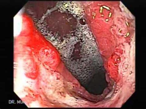 Video de Cáncer de Estómago   YouTube