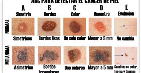 viraleana: ¿Cómo Identificar Los Lunares Cancerígenos De ...