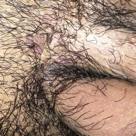 Virus del papiloma humano   VPH   HPV   Condiloma   Verrugas