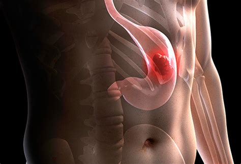 Visual Guide to Gastric  Stomach  Cancer
