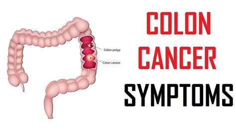 Warning signs of colon cancer | colon cancer symptoms ...