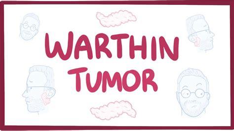 Warthin tumor   causes, symptoms, diagnosis, treatment ...