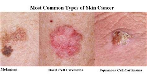 Wellness Lab Health Info: Skin Cancer Sign and Symptoms