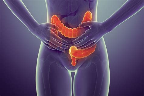 What Are The Early Symptoms And Signs of Colon Cancer?