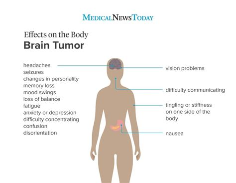 What are the early symptoms of a brain tumor?   Medical ...
