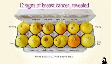 What are the initial symptoms of breast cancer?   Quora