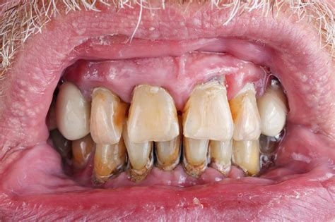 What Are the Oral Cancer Stages?
