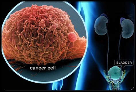 What are the Risk Factors for Bladder Cancer?   Public ...