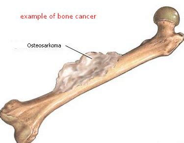 What are the symptoms of bone cancer?   Quora