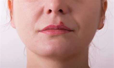 What are the Symptoms of Cold Sores?