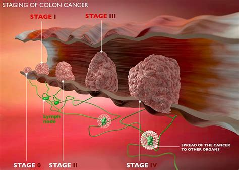 What are the symptoms of early stage colon cancer?    Ex ...
