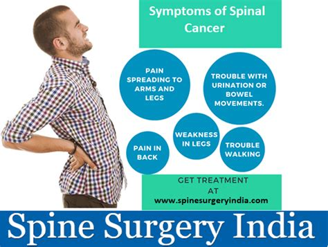 What are the Symptoms of Spinal Cancer?