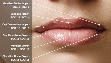What causes cancer on the lips?   Quora