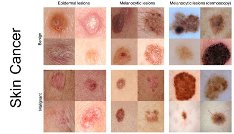 WHAT CAUSES SKIN CANCER?   JustScience