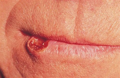What does Mouth Lip Cancer Looks Like?   HTQ
