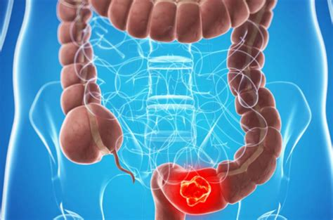 What Influences Stage 4 Colon Cancer Prognosis?