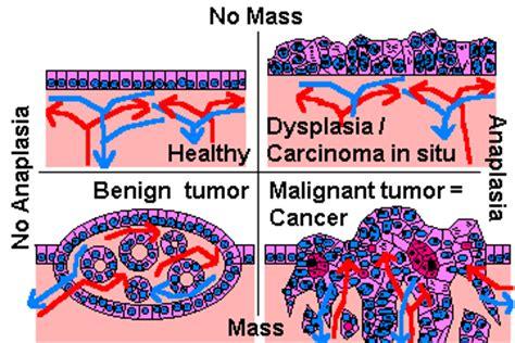 What is a Benign Tumor | Malignant Tumor Symptoms Chennai