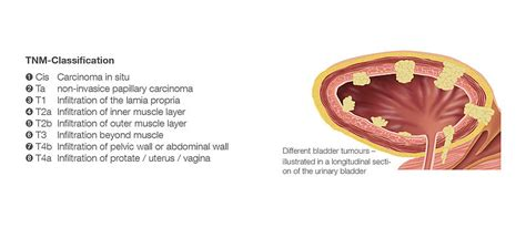 What is Bladder Cancer?   BC Care