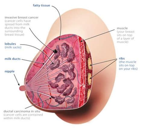What is breast cancer? | Cancer Australia