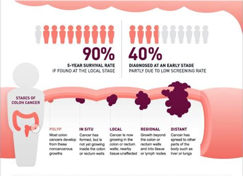 What Is Colon Cancer   Health Life Media
