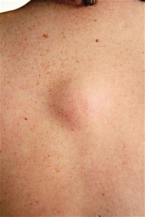 What is Lipoma Tumor & Treatment Los Angeles | LipomaRemovalMD