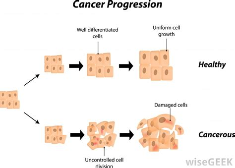 What is Squamous Cell Carcinoma?  with pictures