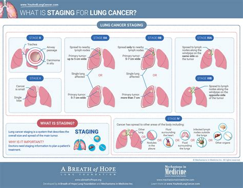 What is Staging for Lung Cancer?