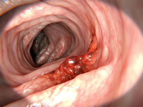 What You Can Do to Catch Colon Cancer Early – Health ...