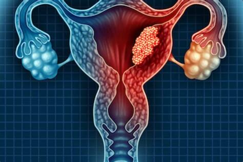 What You Need to Know About Endometrial Cancer | HealthCentral