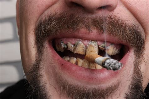 What You Need To Know About Oral Cancer Treatment ...