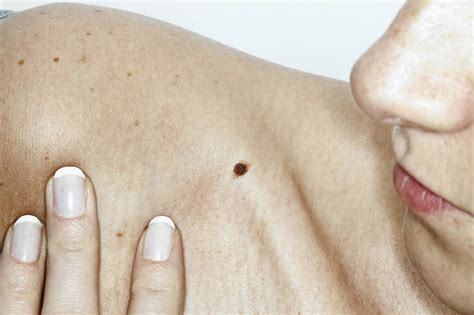 What you need to know about skin cancer, and how to ...