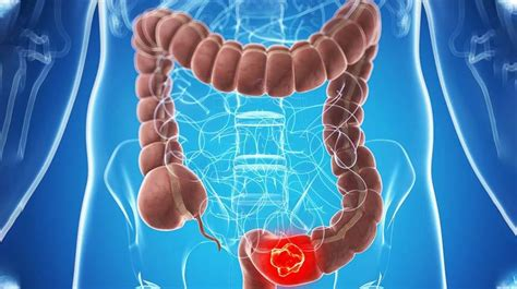 What You Need to Know About The Stages of Colon Cancer ...