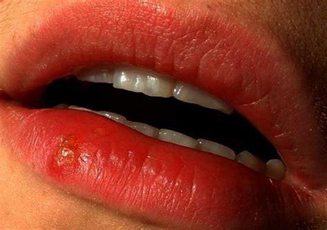 Whiteheads on Lips, Around Lip Line, Upper, Lower Lip, Get ...