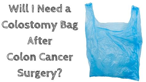 Will I Need a Colostomy Bag After Colon Cancer Surgery ...