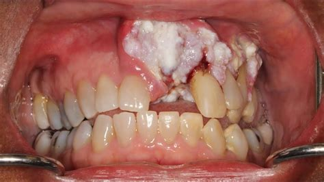 Woman s Mouth Cancer Goes Ignored by Dentists for Years ...