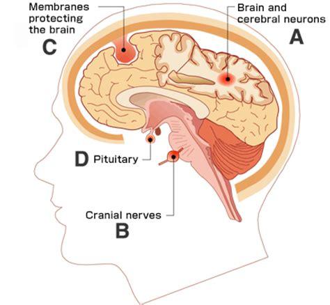 World Trend: Types Brain tumor