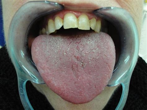Xerostomia, or dry mouth syndrome, can be a symptom of ...